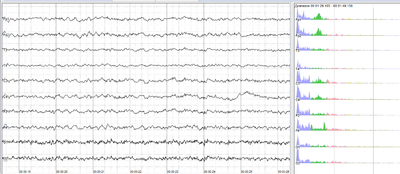 Human EEG without alpha-rhythm.png