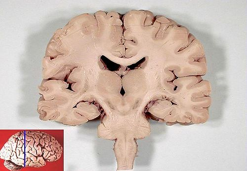 Human brain frontal (coronal) section.JPG