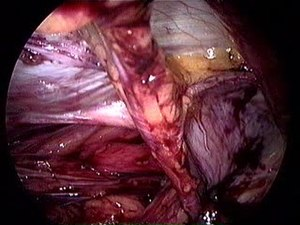 File:Indirect groin hernia. Intraoperative view by TEP.ogv