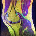 Knee MRI, T1T2PD 14.jpg