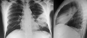 Melioidosis PA and lateral X rays.jpg