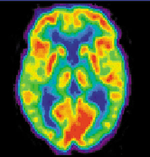 English: Positron emission tomography image of...