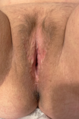 Neovagina - penile inversion vaginoplasty.png