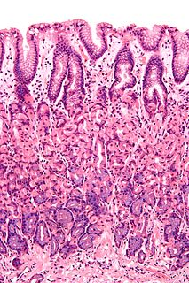 Mucous membrane the protective layer, which lines the interior of hollow organs