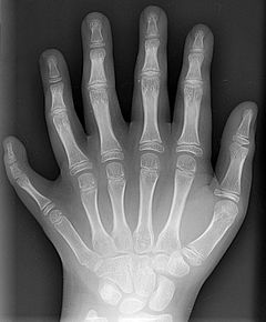 An X-ray of a polydactyl human left hand.