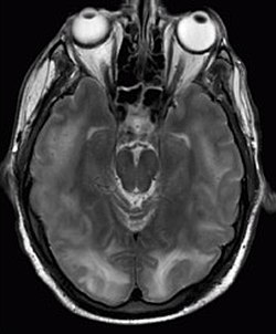 Posterior reversible encephalopathy syndrome MRI.jpg