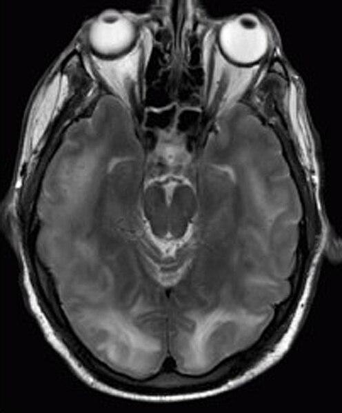 קובץ:Posterior reversible encephalopathy syndrome MRI.jpg
