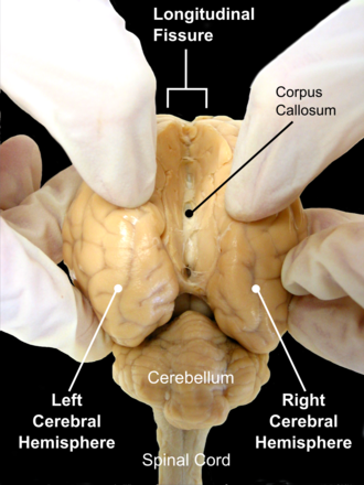 Cerebral hemisphere - The sheep brain seen from the back. Opening longitudinal fissure, the fissure which separates left and right cerebral hemispheres.
