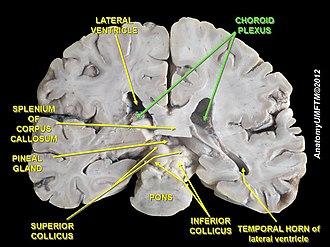 Choroid plexus - Image: Slide 2ff