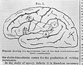The Lancet; The brain Wellcome L0028658.jpg