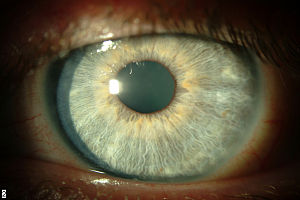 Thygeson's keratitis left cornea after cyclosporin A treatment.jpg