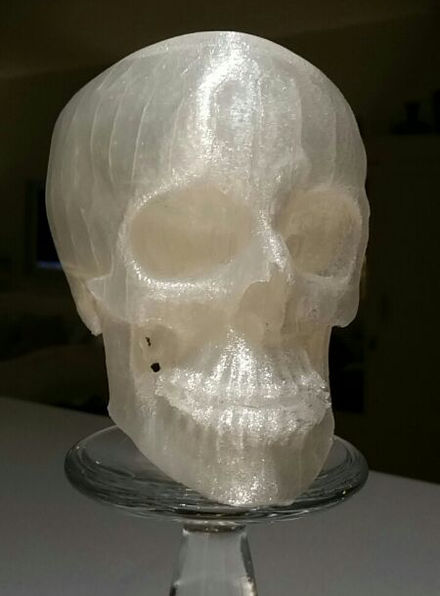 Reduced size 3D printed human skull from computed tomography data. 3D Printed Macrognathism.jpg