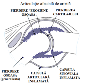Artrita idiopatica juvenila – ce trebuie sa cunoasca parintii | experttraining.ro