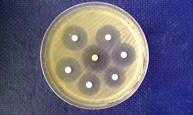 the kirby bauer test a way to determine whether or not bacteria are affected by antibiotics