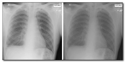 research proposal x ray images enhancement Tutorial with introduction to image processing  imaging tools such as x- ray,  online community and please help me to compose the research proposal.