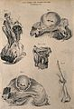Five examples of aneurisms of the thigh, lettered for key. E Wellcome V0009645.jpg