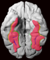 Fusiform Gyrus and its Sulci on 3D-printed brain, inferior view.png