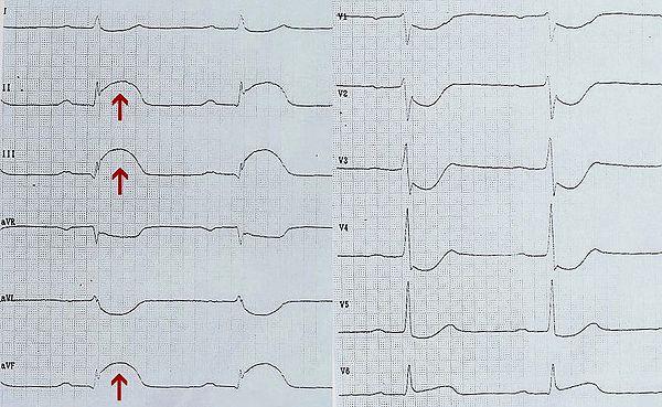 Обложка книги реферат атипичные формы инфаркта миокарда