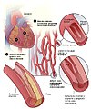 Hdw microvascular disease sp 2012.jpg