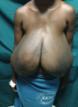 Hypertrophy of breast 10.png