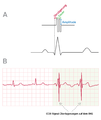 Illustration of CCM signals in relation to the ECG of a real heart failure patient.png