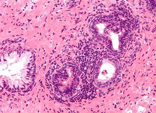 Prostatitis Human disease