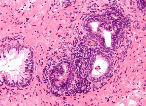 pautas de prostatitis crónica
