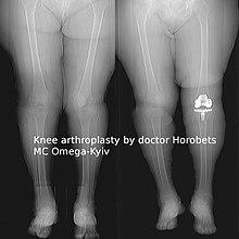 Пластмассовый коленный сустав тазобедренный сустав подвывих у ребенка дцп