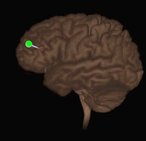Neuronavigation - Left Dorsolateral Prefrontal Cortex targeted using high definition MRI. The red sphere is the anterior inferior left DLPFC, the green sphere is the indicated coil location. Left DLPFC is stimulated for the treatment of depression and other conditions