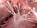 Muscolopapillare+cordetendinee.jpg