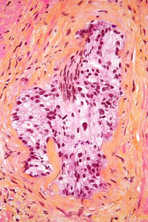 HPS stain - Micrograph of a HPS stained section demonstrating perineural spread of prostate adenocarcinoma.