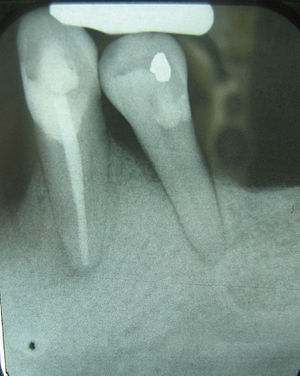 English: Periodontal bone loss shown in X-Ray ...