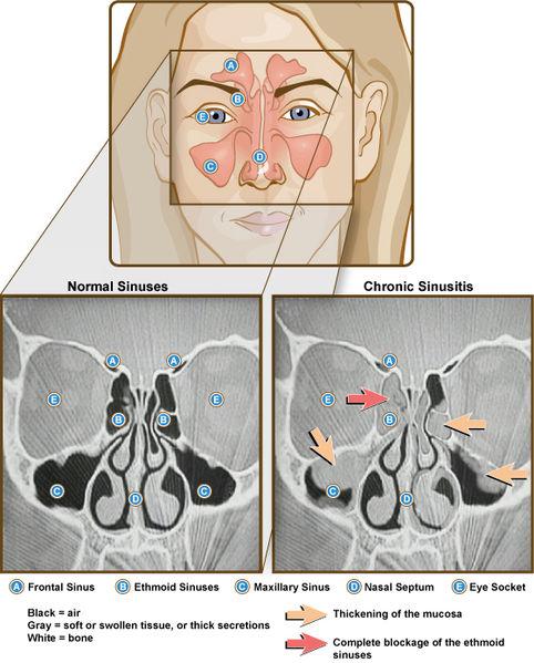 File:Sinuses and Sinusitis (5937085231).jpg