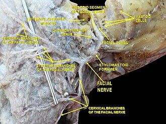 Ear canal - Image: Slide 1CAC