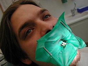 Dental sealant - Image: Zahnarzt Alen 5690 Kofferdam