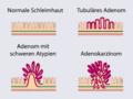 Adenom-Karzinom-Sequenz.PNG