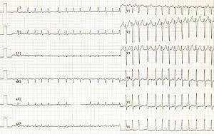 Atrial fibrillation 01.jpg