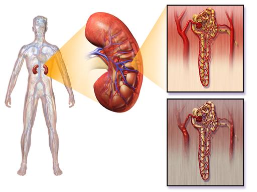 封面圖片(學習正確腎臟健康知識 - 青壯年也要小心腎炎(2))