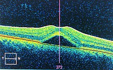 Central serous retinopathy - Wikipedia, the free encyclopedia