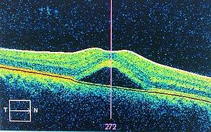 Central serous retinopathy.jpg
