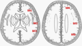 Cerebral regions by ASPECTS.png