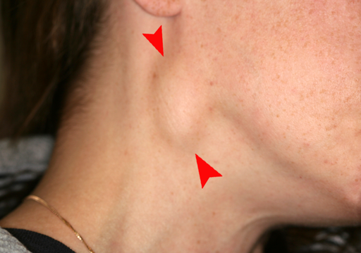Cervical lymphadenopathy right neck