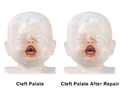 Cleft Palate Repair.png