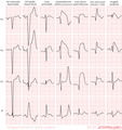 De-Pathologic ST elevation (CardioNetworks ECGpedia).png