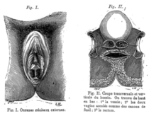 Double vagina Vagina duplex from Golay 1875.png