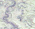 Elastic fibers weigerts elastic stain non-lactating mammary glands.png