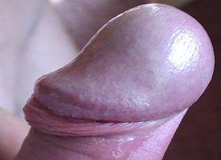 dog glans penis