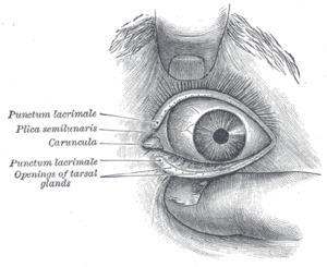 Plica semilunaris of conjunctiva - Front of left eye with eyelids separated to show medial canthus. (Plica semilunaris labeled at center left.)