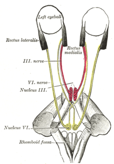 Sixth nerve palsy non-neoplastic or neoplastic disorder affecting the abducens nerve (sixth cranial nerve)