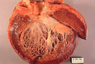 Cardiomyopathy Disease of the heart muscle